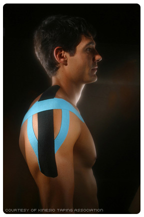 Kinesio Tape Shoulder Application