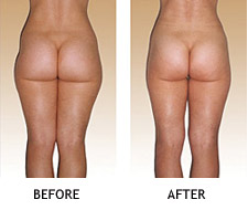 Cure Cellulite